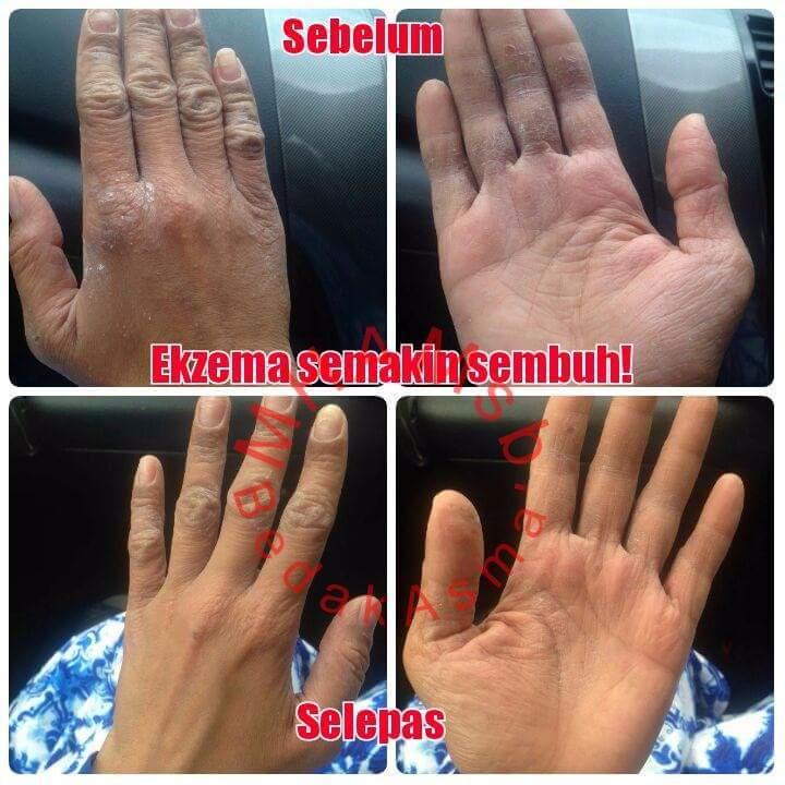 Mengujakan-penyakit-ekzema-dan-psoriasis-sembuh-menggunakan-Bedak-Asmak-16 Berkesan ! Penyakit Ekzema dan Psoriasis sembuh dengan Bedak Asmak